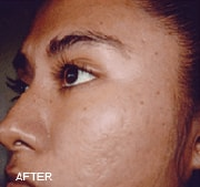 chemical-peels-after
