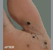 Laser Wart Removal | Washington Dermatology Consultants