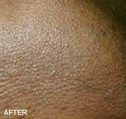 laser-hair-removal-after-3
