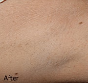 laser-hair-removal-after-6