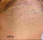 laser-hair-removal-after-7