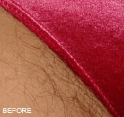laser-hair-removal-before-2