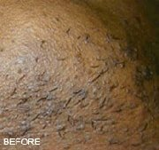 laser-hair-removal-before-3