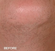 laser-hair-removal-before-5