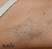 laser-hair-removal-before-6