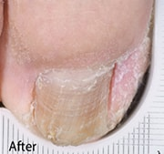 nail-fungus-treatment-after-4
