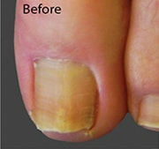 nail-fungus-treatment-before-1