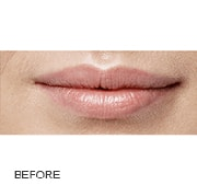 restylane-before-3