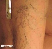 vein-treatment-before-3